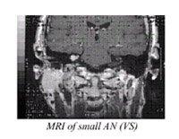 mri small acoustic neuroma surgery