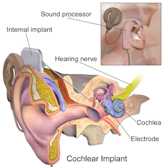 Cochlear Implant Surgery for children