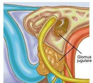 glomus tumor surgery