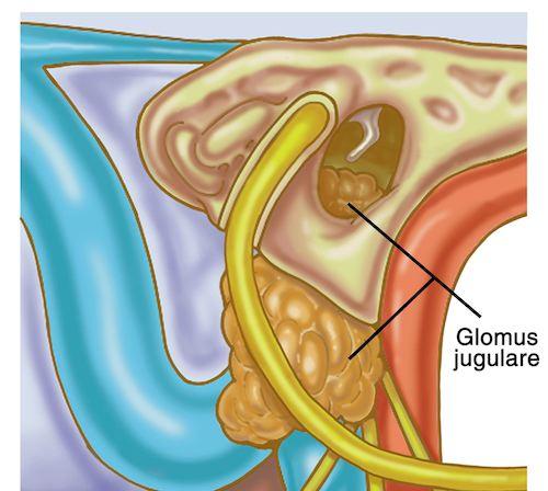 sensorineural hearing loss treatment steroids