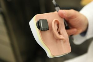 hearing loss test for baha device