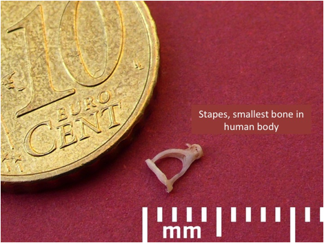 size of stapes in stapecdotomy nyc
