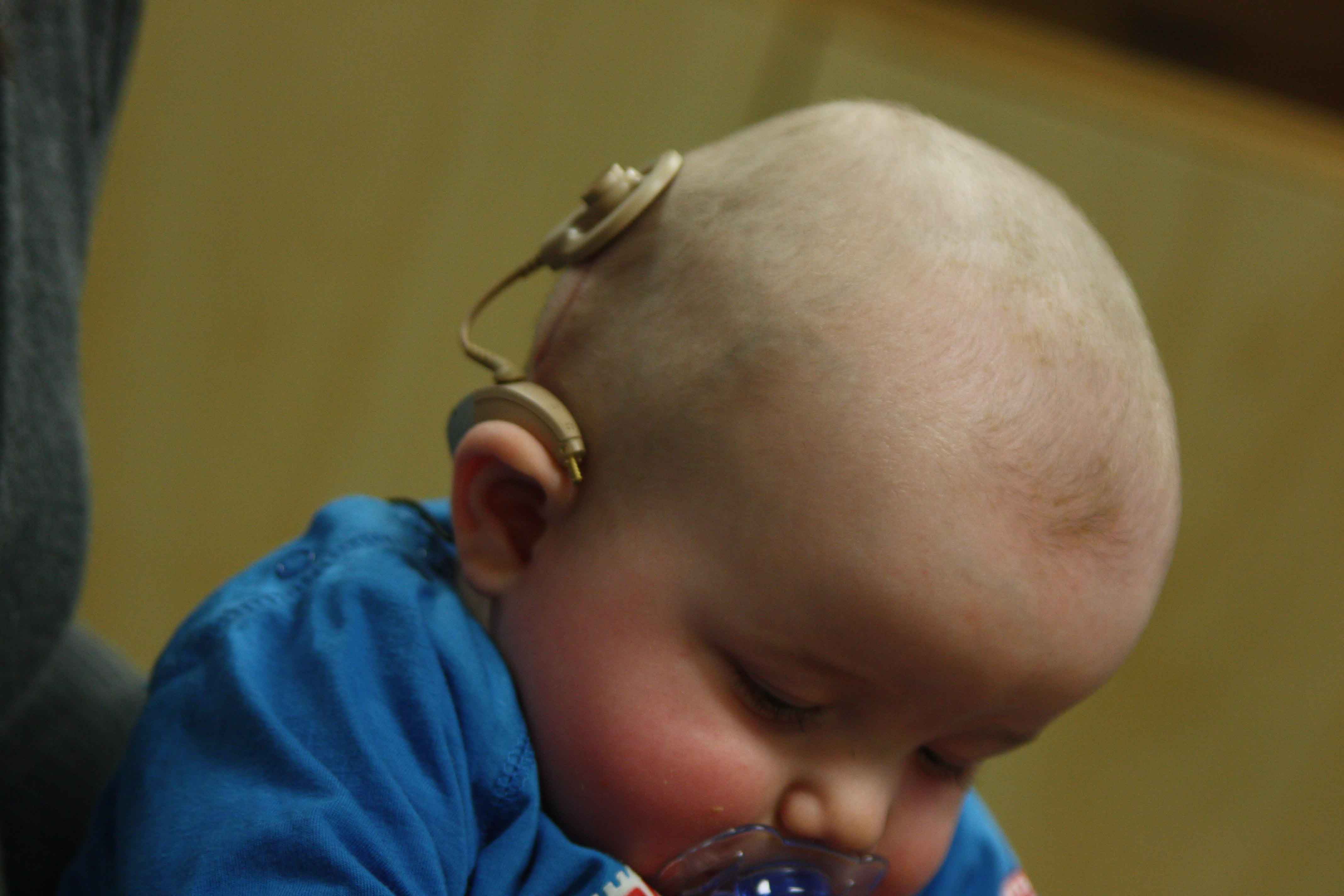 cochlear implant in children