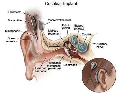 guide to cochlear implant in children